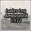 Ladys Leg amputated 1932